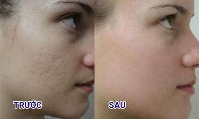 Công dụng của Tế bào gốc 28 days Suiskin